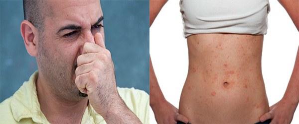 Общая аллергическая симптоматика